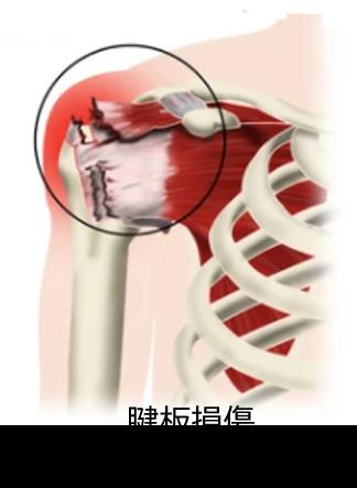 腱板損傷 病態