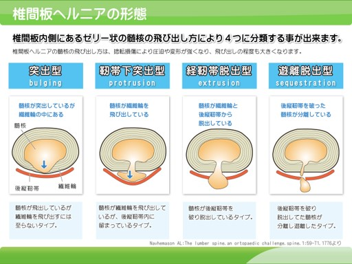 腰椎間板椎ヘルニアの症状