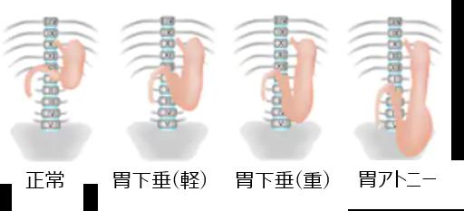 胃下垂の種類
