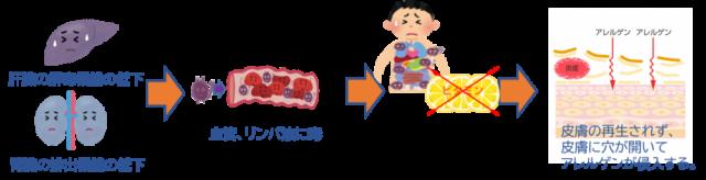 アレルギーの発生機序