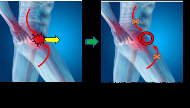 股関節周りの筋肉から影響をする。
