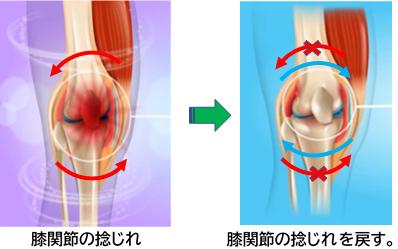 膝関節周りの筋肉から影響をする。